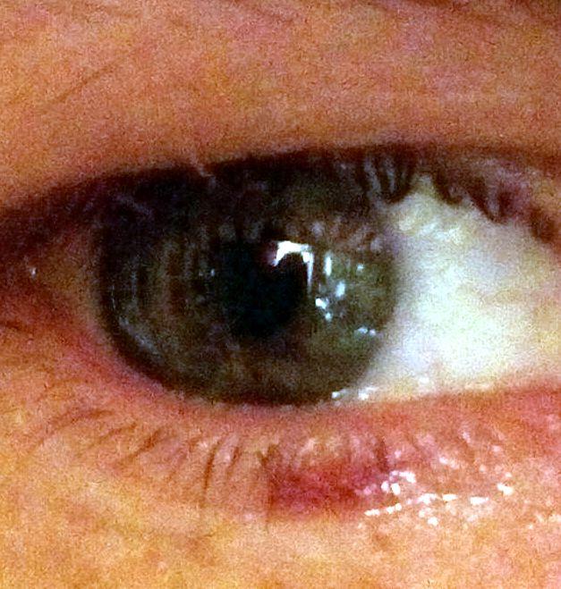 LASIK операция по коррекции зрения